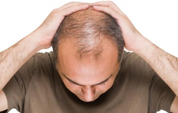 Queda de cabelos – Tricologia